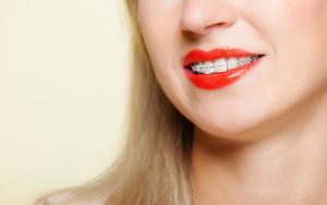 Glenview braces | Clear Braces | Super Dental Family Center