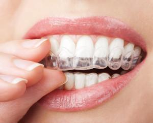 clear braces - Glenview - Super Dental